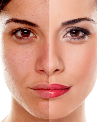 chemical peel doctor raleigh nc